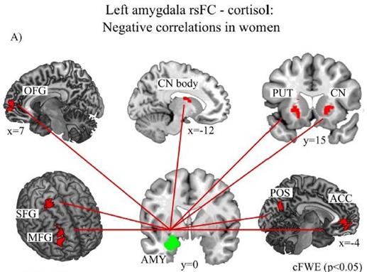 amigdala stress depressione donne