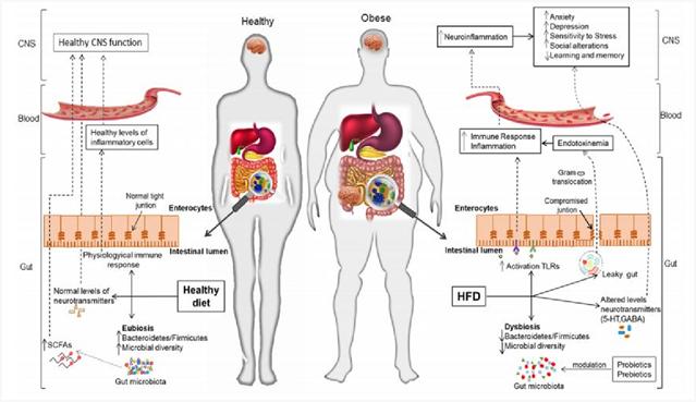 asse intestino cervello obesità