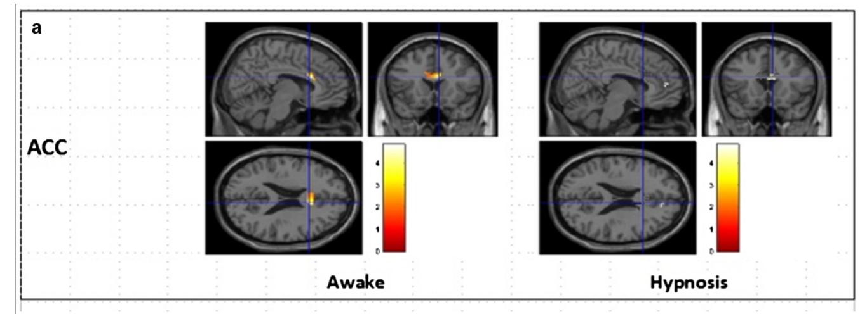 corteccia cingolata anteriore ipnosi fobia