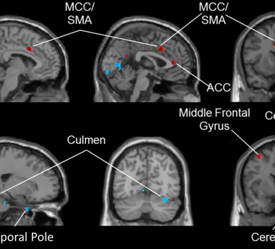 danzaterapia cervello